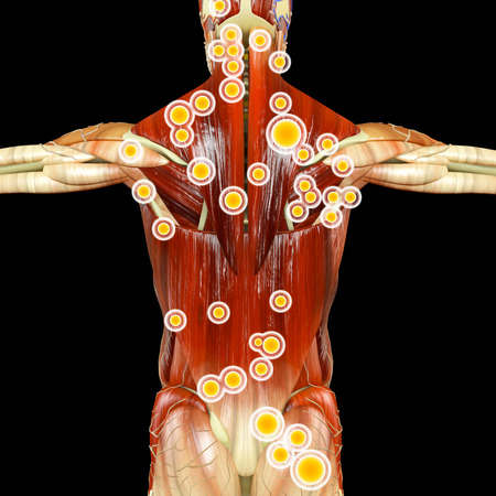 Anatomy of human body seen from behind. Man seen from behind with muscles and trigger points highlighted. 3d rendering