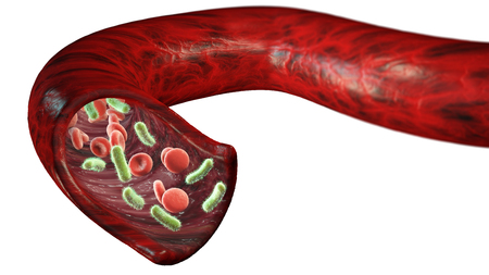 Vein and blood cells attacked by a virus, circulation of bacteria within an artery. Section of a vein. 3d rendering