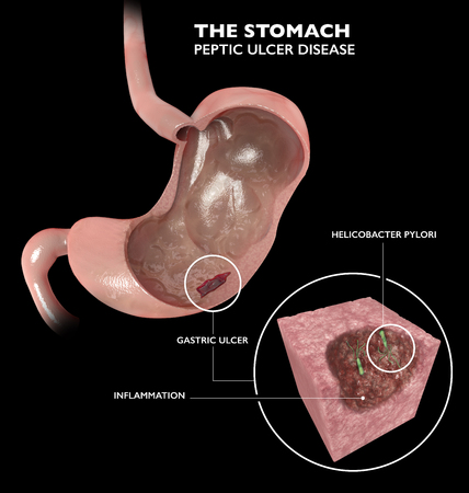 Section 3d of the stomach. Peptic ulcer disease, gastric ulcer is a break in the inner lining of the stomach. Helicobacter pylori is a bacterium usually found in the stomach. Anatomy. 3d rendering