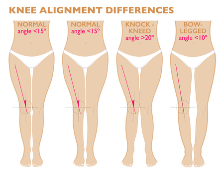 Legs and angles of the knees, different types of leg shapes. Front view girl, body anatomy. Normal varus and valgus Illustration