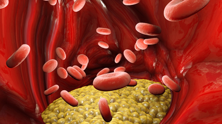 Cholesterol formation, fat, artery, vein, heart. Red blood cells, blood flow. Narrowing of a vein for fat formation, 3d render Фото со стока