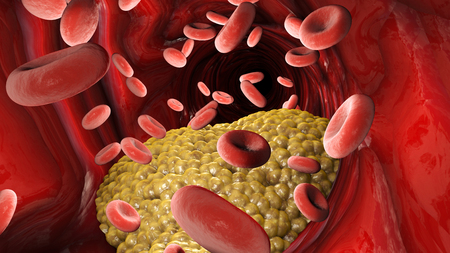Cholesterol formation, fat, artery, vein, heart. Red blood cells, blood flow. Narrowing of a vein for fat formation, 3d render Stock Photo