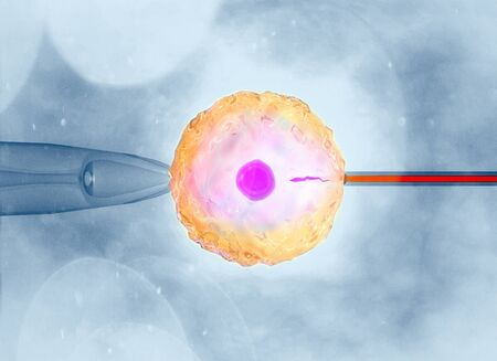 Artificial or assisted fertilization is the process by which the union of gametes is artificially carried out, by observation under a microscope, 3d rendering