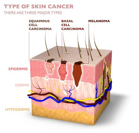 Skin tumors, moles and spots, 3d section of the skin layer. Three types of skin cancer, squamous cell carcinoma, basal cell carcinoma, melanoma. 3d render