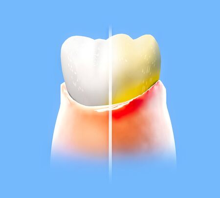 Tooth, sore gum, redness, dentistry, dental cleaning, oral hygiene. Using toothpaste to protect the tooth from plaque formation, 3d render