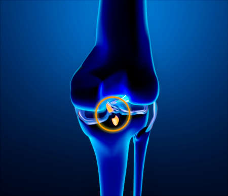 Broken posterior cruciate ligament. Injury and rupture. Enlargement of the bones of the knee, femur and tibia. 3d render