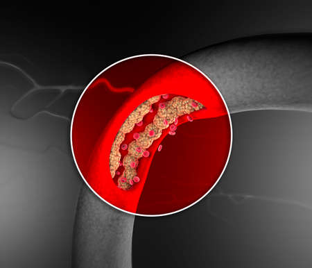 Cholesterol formation, fat, artery, vein, heart. Red blood cells, blood flow. Narrowing of a vein for fat formation. Surgery operation, 3d render