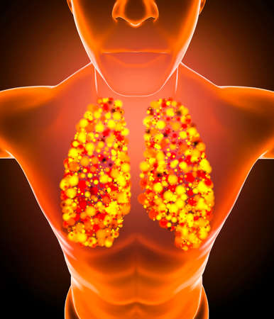 Human anatomy, problems with the respiratory system, severely damaged lungs. Bilateral pneumonia. Covid-19, coronavirus. Patient and smoke. Smoker. 3d render