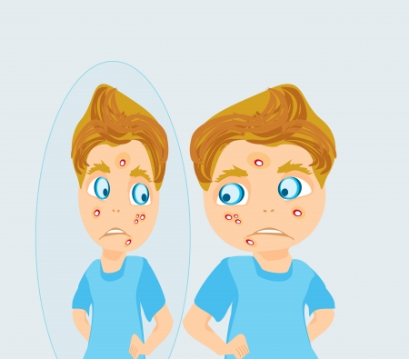 boy in puberty with acne Stock Vector - 18560941