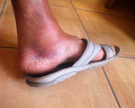 heathcare: broken ankle,foot man Stock Photo
