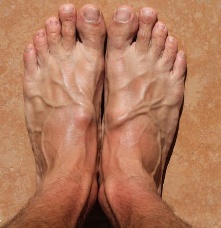 orthopaedist: hallux foot