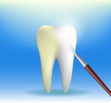 branqueamento: Dente humano paint brush branquear Ilustra��o