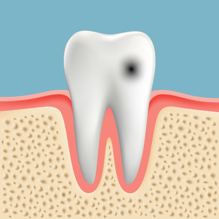 bacterial plaque: Vector image of a human tooth with caries Illustration