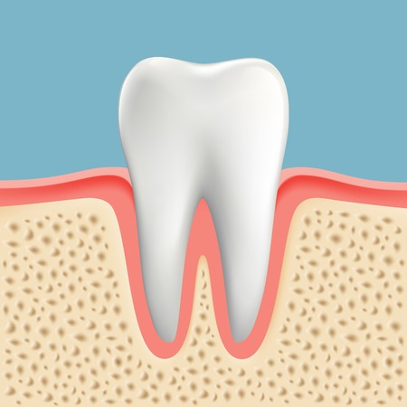 Vector image of a human tooth with caries Illustration