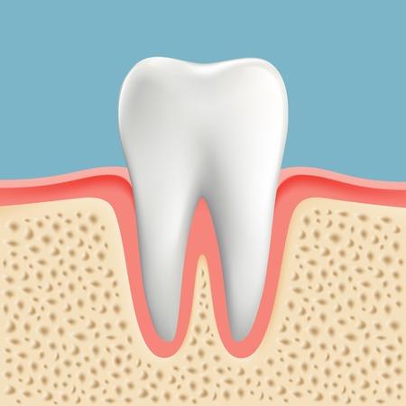 Vector afbeelding van een menselijke tand met cariës