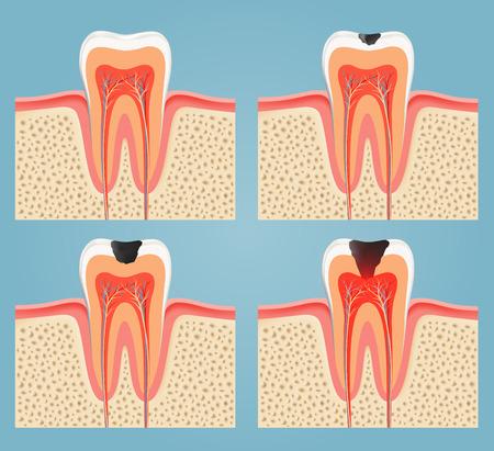 diente caries: etapas de la caries dental