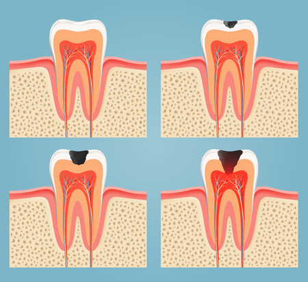 human blood vessel: stages of tooth decay