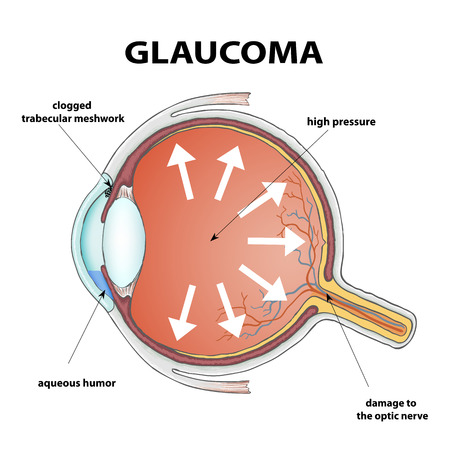 optic nerve: Human eye. Disease glaucoma. Stock Vector illustration.