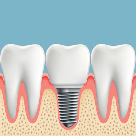 dents humaines et l'implant dentaire. Stock illustration vectorielle.