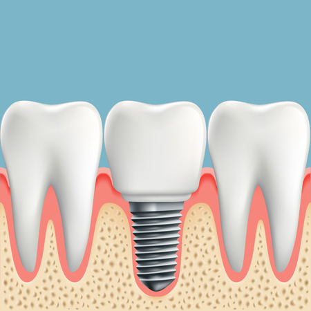 implanted: Human teeth and Dental implant. Stock vector illustration.