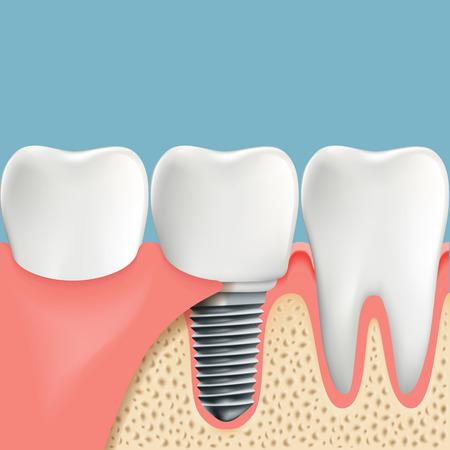 Los Dientes Humanos Y De Implantes Dentales. Anatomía De La Cavidad ...