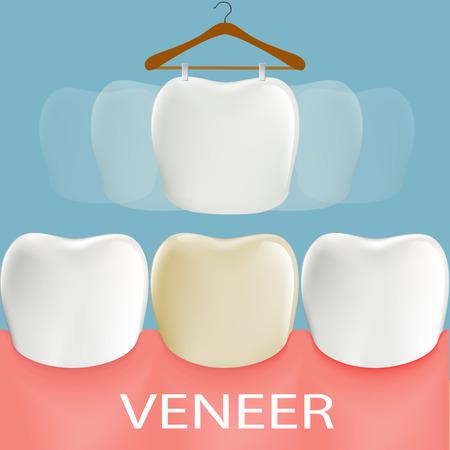 Dental veneers. Tooth anatomy. Stock vector illustration.