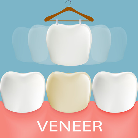 aesthetic: Dental veneers. Tooth anatomy. Stock vector illustration.