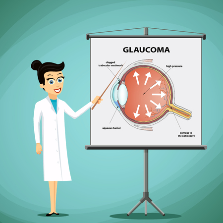 Doctor shows on a blackboard diagram of the human eye. Glaucoma disease. Stock vector illustration.