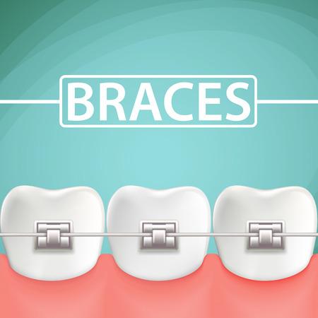 Menschliche Zähne mit Metallstreben. Auf Cartoon Illustration.