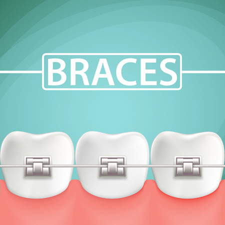 braces: Human teeth with metal braces. Stock cartoon illustration. Illustration