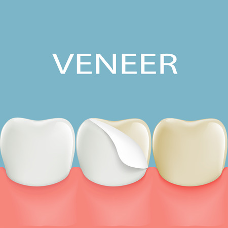 lab technician: Dental veneers on a human tooth. Stock illustration.