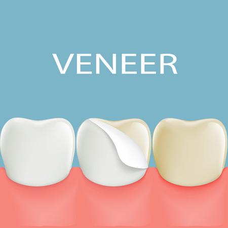 Dental veneers on a human tooth. Stock illustration.