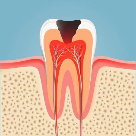 Menschlicher Zahn mit Karies. Stock illustration.