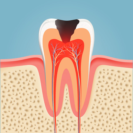 Human tooth with caries. Stock illustration.