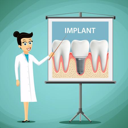 Femme dentiste montrant une affiche avec implant dentaire. Traitement dentaire. Stock illustration vectorielle.
