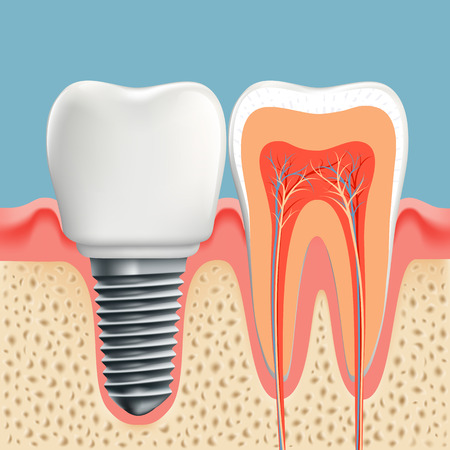 Human tooth in cross-section and dental implant. Stock vector illustration.