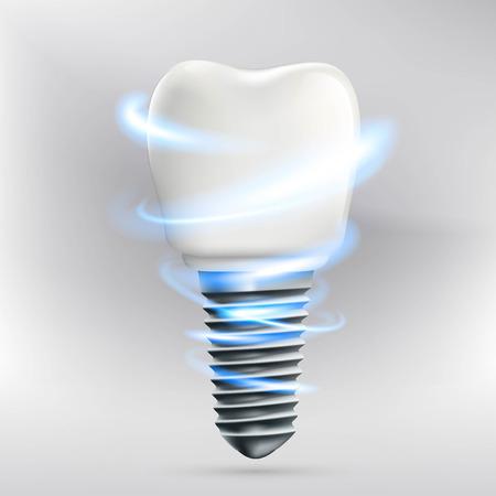 Icon human dental implant. Stock vector illustration. Illustration