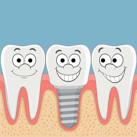 implanted: Human teeth and dental implant. Stock vector cartoon illustration.