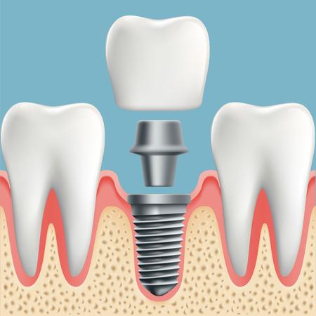Ludzkie zęby i schemat cięcia implantu dentystycznego. Ilustracje wektorowe