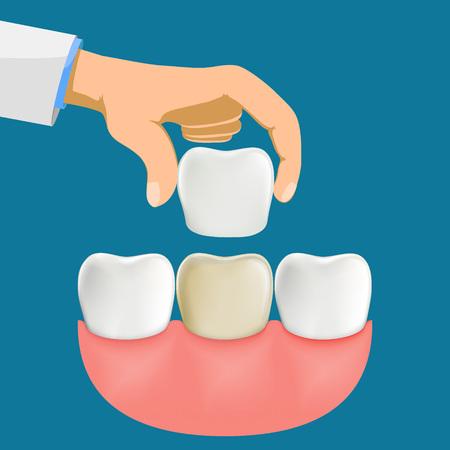 Faccette dentali in porcellana di installazione del dentista. Illustrazione vettoriale d'archivio. Vettoriali