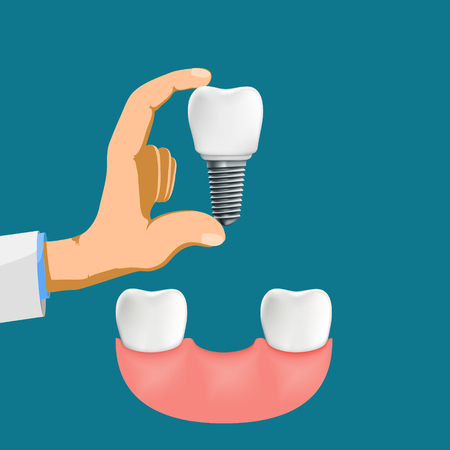 Dentist holds a dental implant in his hand. Vector stock illustration.