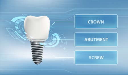 Dental implant with screw and crown. Technology user interface. Vector illustration Illustration