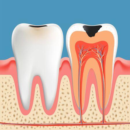 Kariesanatomieplakat. Schmelz und Dentin von Zahnkaries Infektion. Vektor-Illustration Vektorgrafik