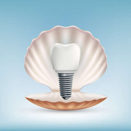 Dental tooth implant on a background of seashell. Vector illustration