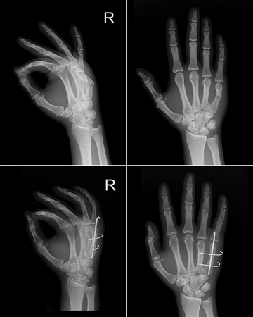 subsequent: X-ray image of right hand show fracture fifth finger with subsequent fixation by the metal structure