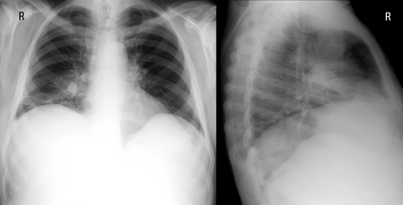 generalized: X-ray lung. showing a large infiltrate in the middle lobe of the right lung. Pneumonia. front and lateral projection