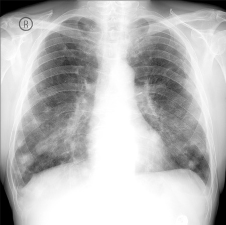 x-ray show lung cancer. Multiple lung metastases. Stock Photo