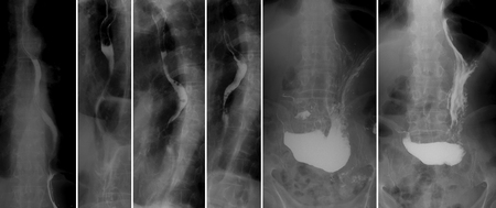 X-ray of the upper gastrointestinal series (UGI) with barium. Polypoid cancer of the middle third of the esophagus.