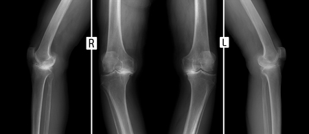 X-ray of knee joints. Deforming osteoarthritis.