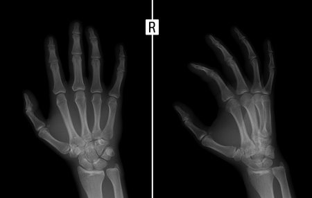 proximal: X-ray of the hand. Shows the Fracture of the base of the proximal phalanx of the second finger of the right hand.
